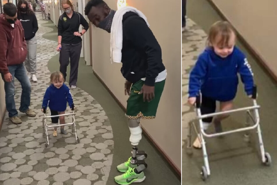 Paralympic athlete helps 2-year-old try out prosthetic leg for first time