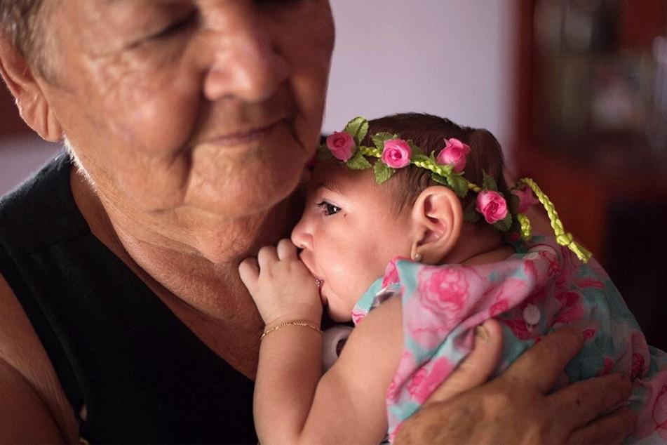 Zahlreiche Babys waren von der lebensgefährlichen Schädelfehlbildung, die durch die Zika-Infektion ausgelöst wurde, betroffen.