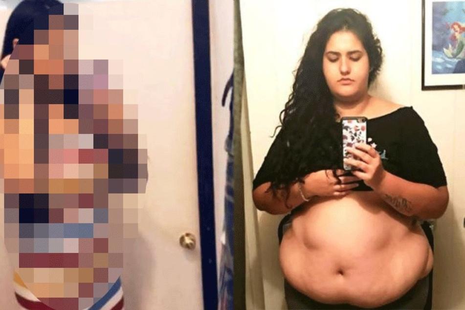 Frau nimmt über 100 Kilogramm ab und sieht jetzt aus wie