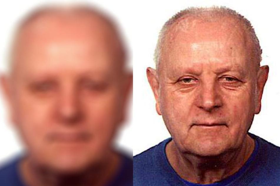 Dieser 72-jährige Patient aus einer Klinik in Bad Kösen wird seit Mittwoch vermisst.
