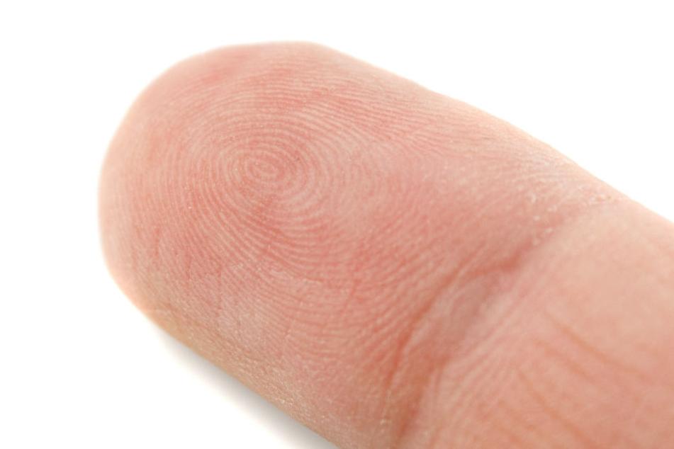 Ob die Fingerkuppe wieder angenäht werden konnte, blieb unklar. (Symbolbild.)