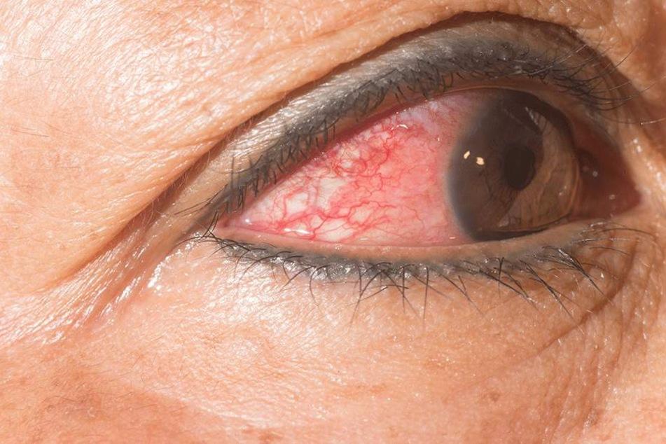 Frau geht mit juckenden Augen zum Arzt, der macht einen Horror-Fund