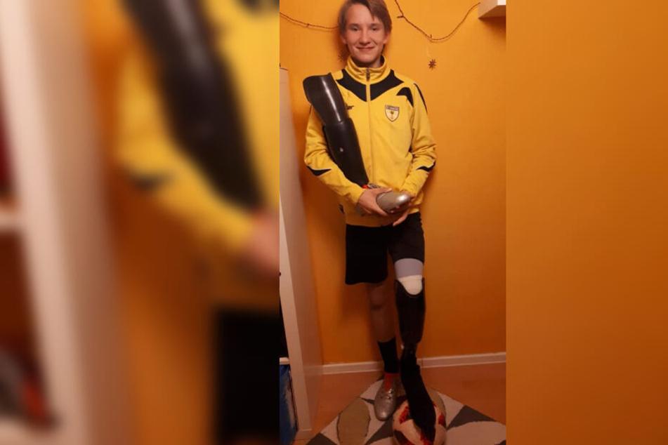 Mit seiner Spezial-Prothese kann Louis nun auch wieder Fußball spielen.