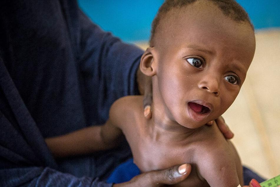 Traurige Zukunft: 56 Millionen Kinder könnten bis 2030 an vermeidbaren Ursachen sterben