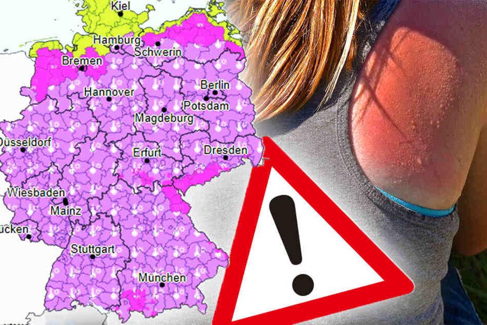 Hautkrebs-Alarm! Wetterdienst warnt heute vor heftiger UV-Strahlung