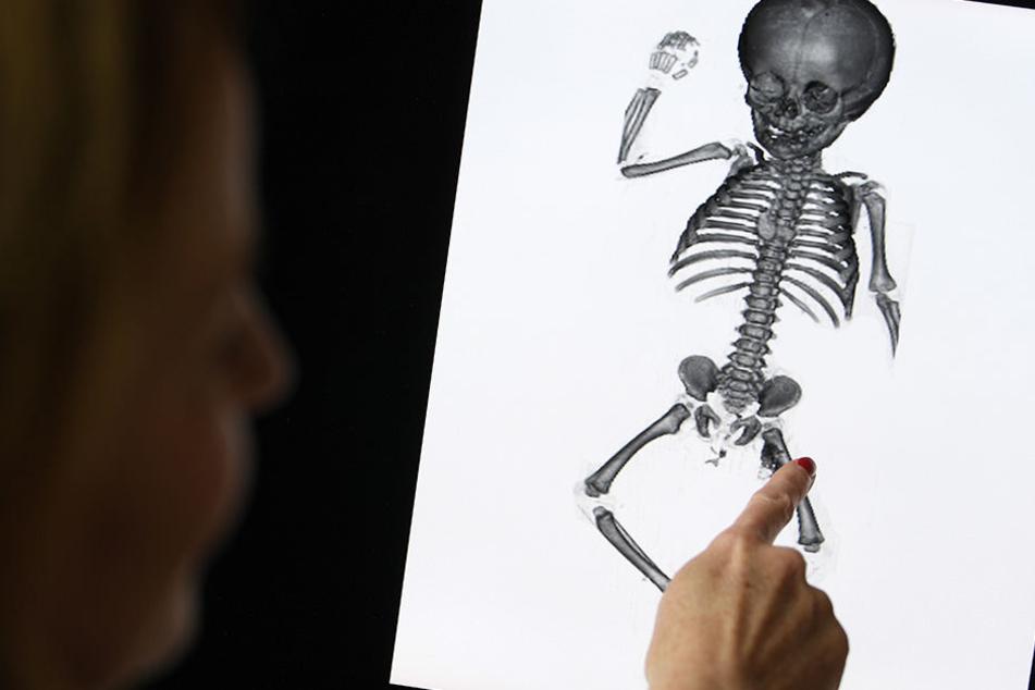 74 Kinder-Leichen 80 Jahre lang gelagert: Jetzt werden sie zur ...