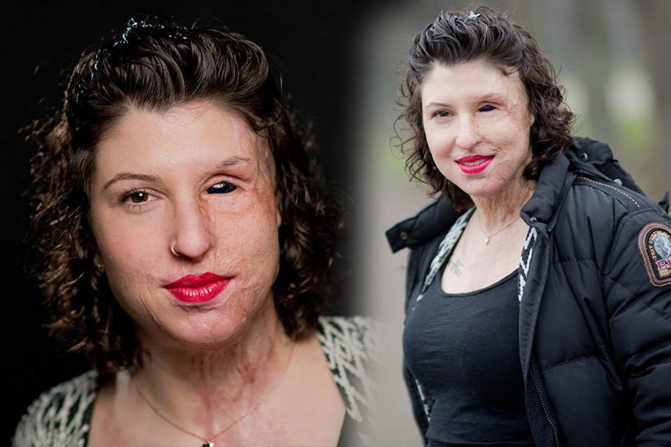 Ex-Freund schüttete ihr Säure ins Gesicht: Aus dem Knast schreibt er jetzt böse Briefe