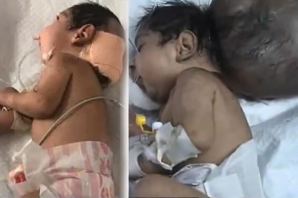 Das Baby wurde mit einem zweiten Kopf geboren, der später in einer Operation entfernt werden konnte.