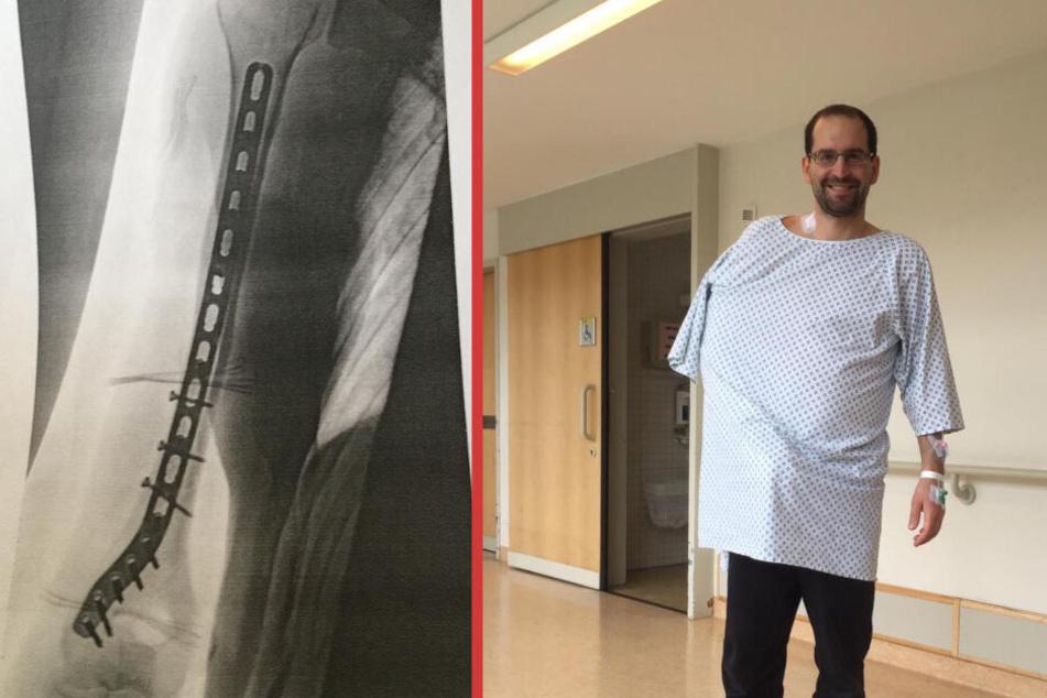 Alis Arm war fünffach in der Länge und einmal in der Breite gebrochen.