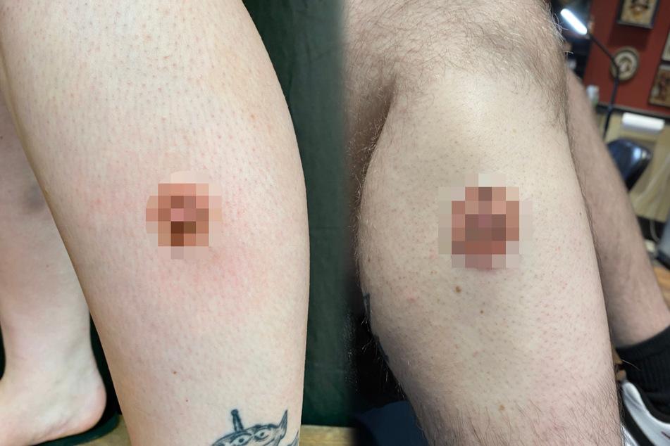 Nippel-Tattoo auf dem Bein: Was steckt hinter diesem Brustwarzen-Kunstwerk?