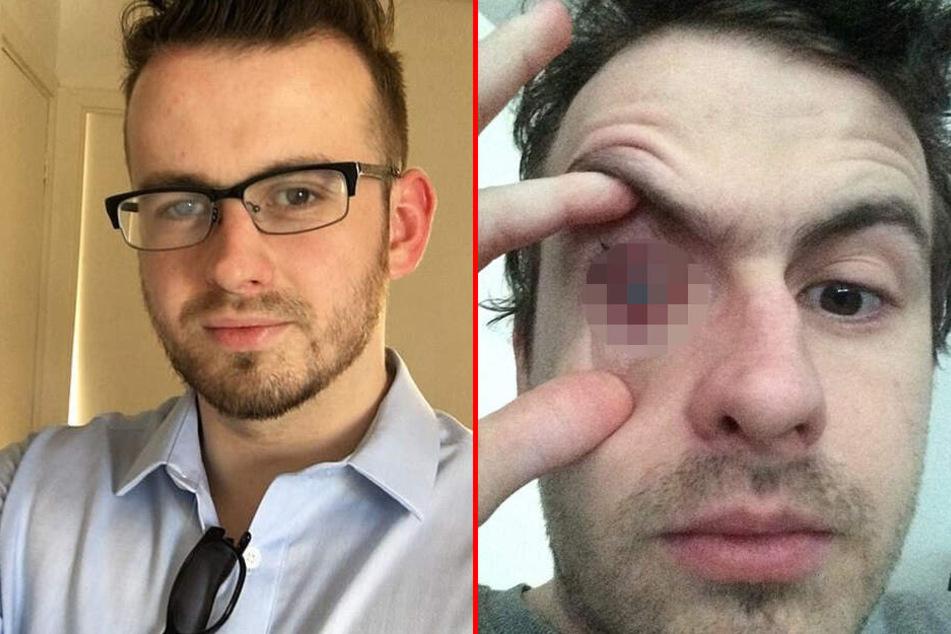 Nick Humphrey verlor auf dem rechten Auge seine Sehfähigkeit.