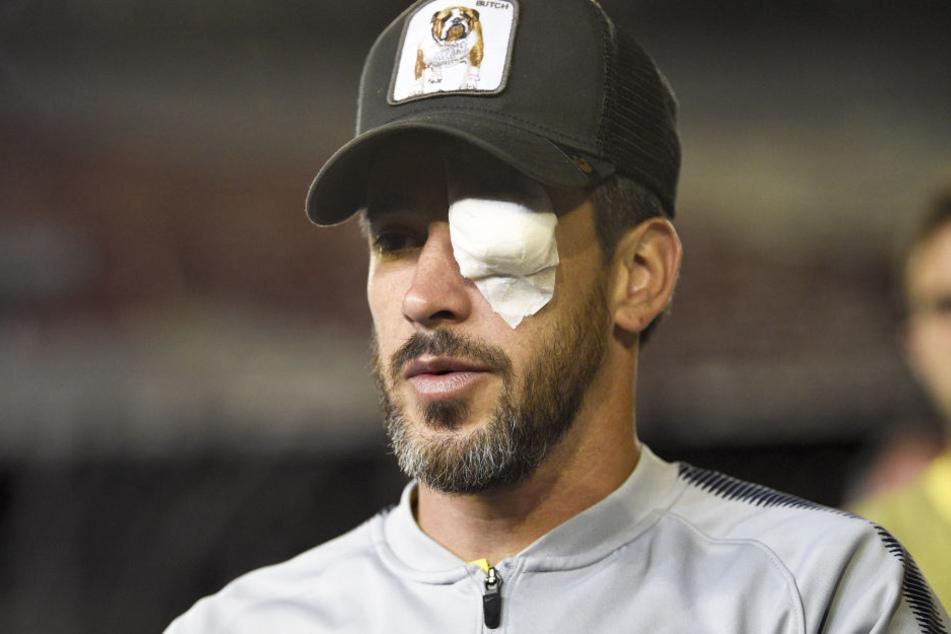 Pablo Perez, Spieler von den argentinischen Boca Juniors, trägt eine Augenklappe.