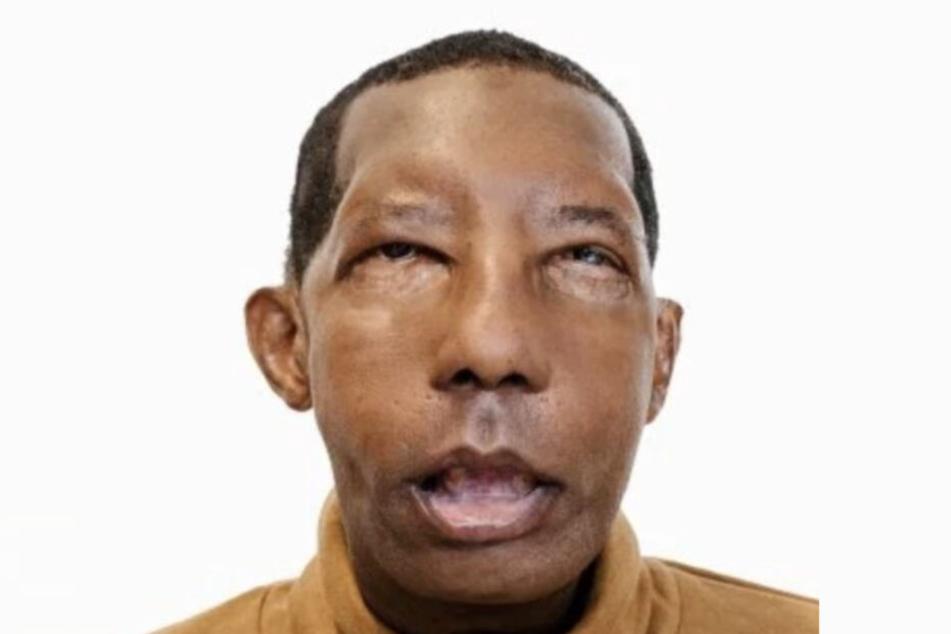 Nach der Transplantation: Nase, Ohren und Lippen sind wieder intakt.
