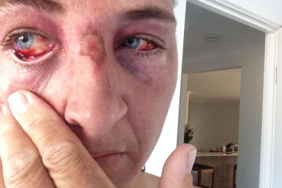 Die Blutgefäße in Sue Amblers Augen wurden durch den Schlangenangriff verletzt.