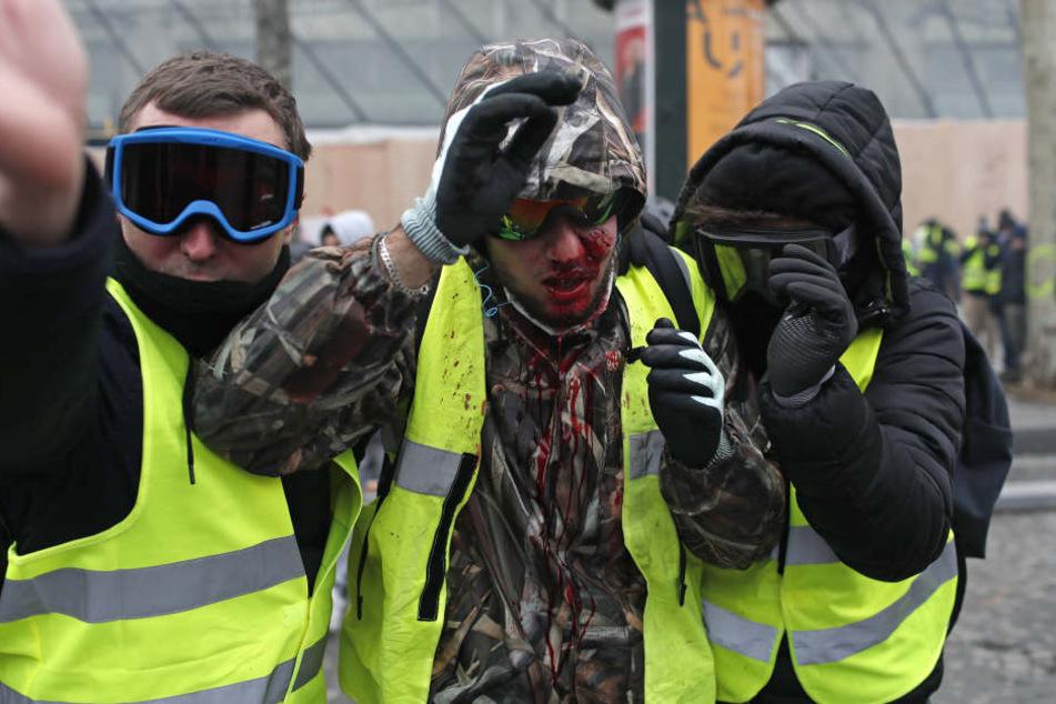 """Ein Demonstrant der """"Gilets Jaunes"""" (Gelbwesten) ist mit Blut beschmiert, nachdem er beim Protest verletzt wurde."""