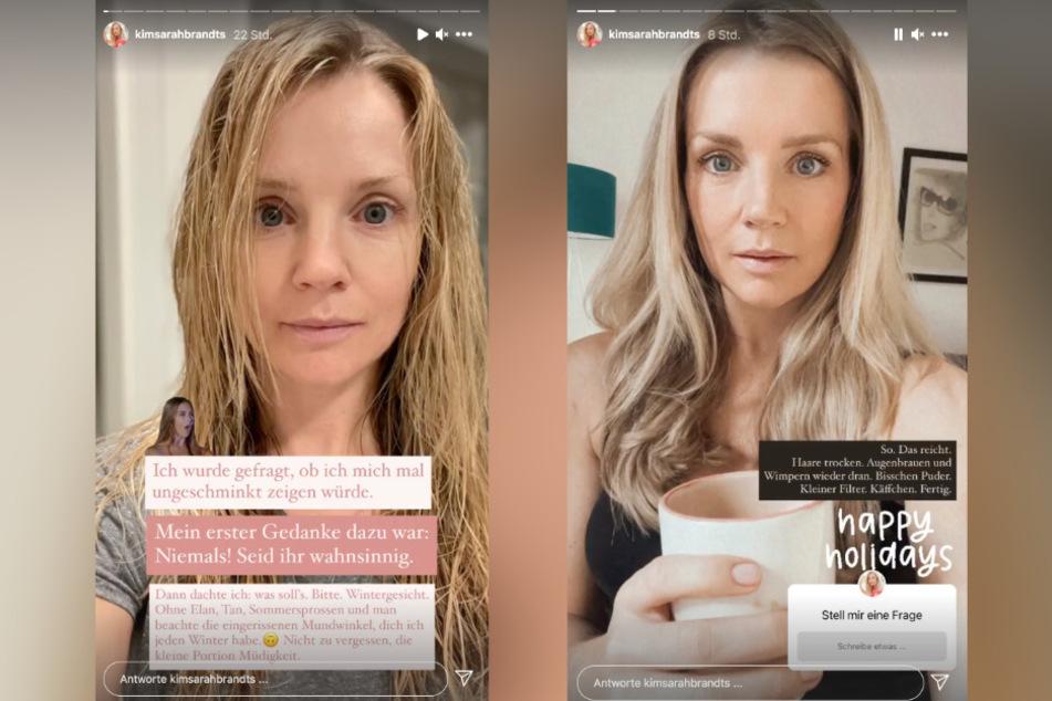 Auf Instagram zeigt Kim-Sarah Brandts (37) den Vorher-Nachher-Vergleich.