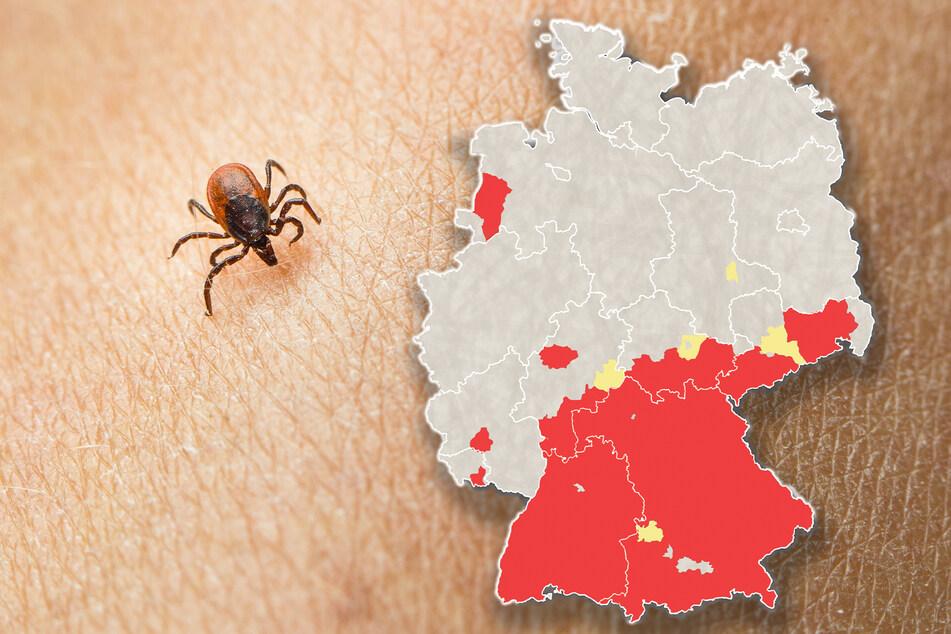 Laut Robert Koch-Institut (RKI) besteht nur in bestimmten Risikogebieten die Gefahr, sich bei einem Zeckenstich mit FSME-Viren anzustecken. Diese Risikogebiete (rot) sind auf der Karte rot markiert. Gelb sind solche Kreise, die seit 2021 als Risikogebiete ausgewiesen werden.