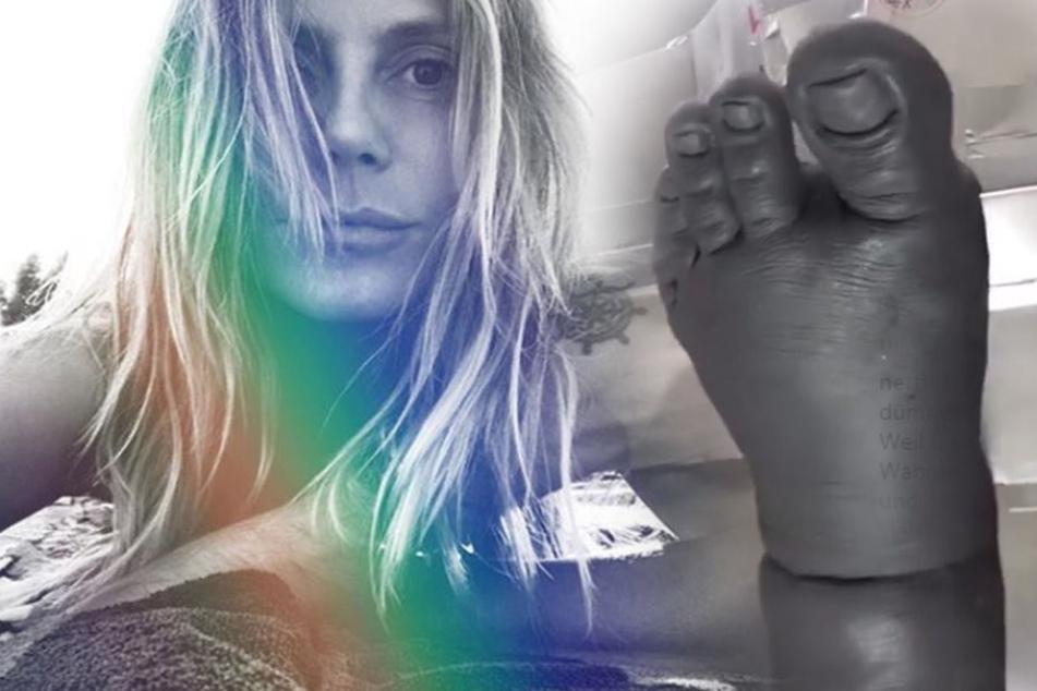 Heidi Klum präsentiert auf Instagram diesen dicken Klumpfuß.