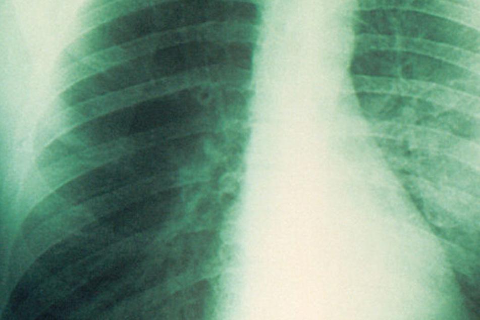 Auf Madagaskar breitet sich die tödliche Lungenpest aus.