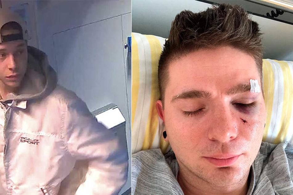 Noch immer sucht die Polizei den brutalen Schläger (li.). Nach der Attacke am vierten November, landete Tom im Krankenhaus.