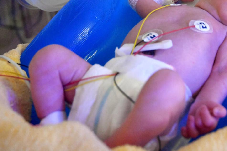 Die Vorfälle sollen sich auf der Neugeborenen-Intensivstation des Uni-Klinikums in Marburg ereignet haben (Symbolbild).
