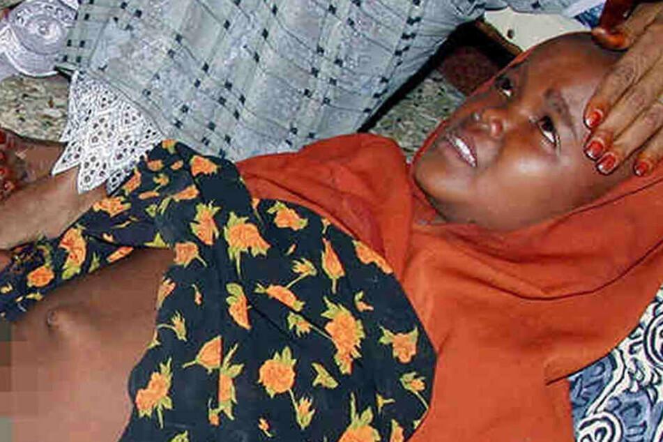 Das vor fünf Tagen beschnittene Mädchen Fay Mohammad liegt in Mogadischu (Somalia) mit zusammengebundenen Beinen auf einer Decke.