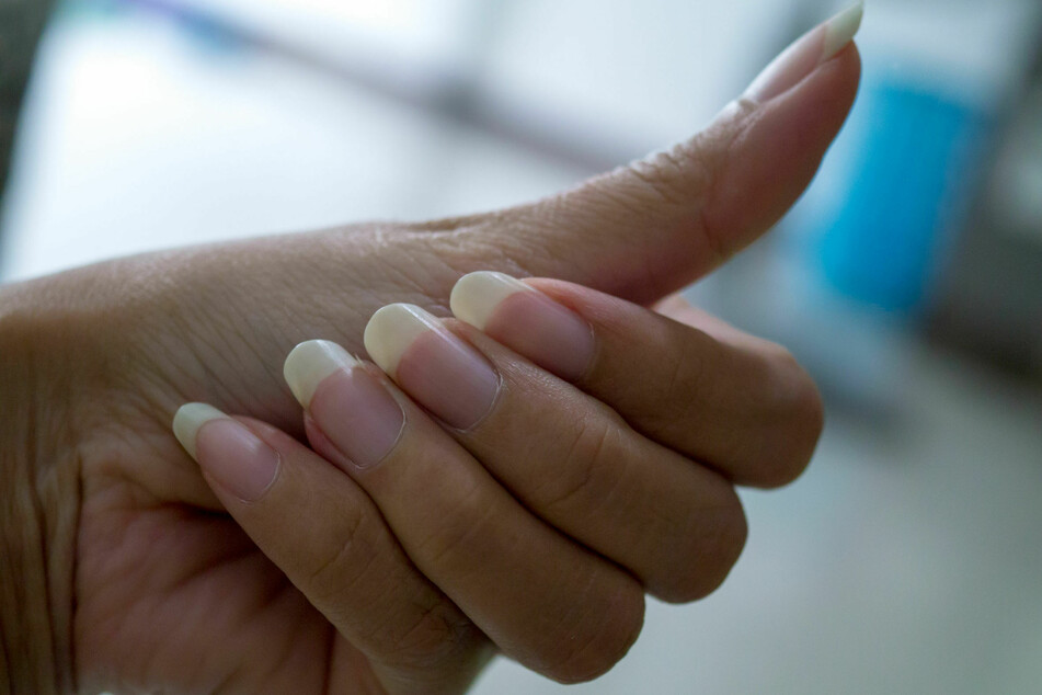 Healthy nails should be a natural pink without ridges or discolorations.