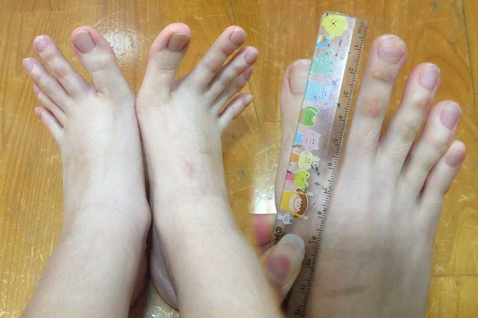 Hat diese kleine Frau die längsten Zehen der Welt?