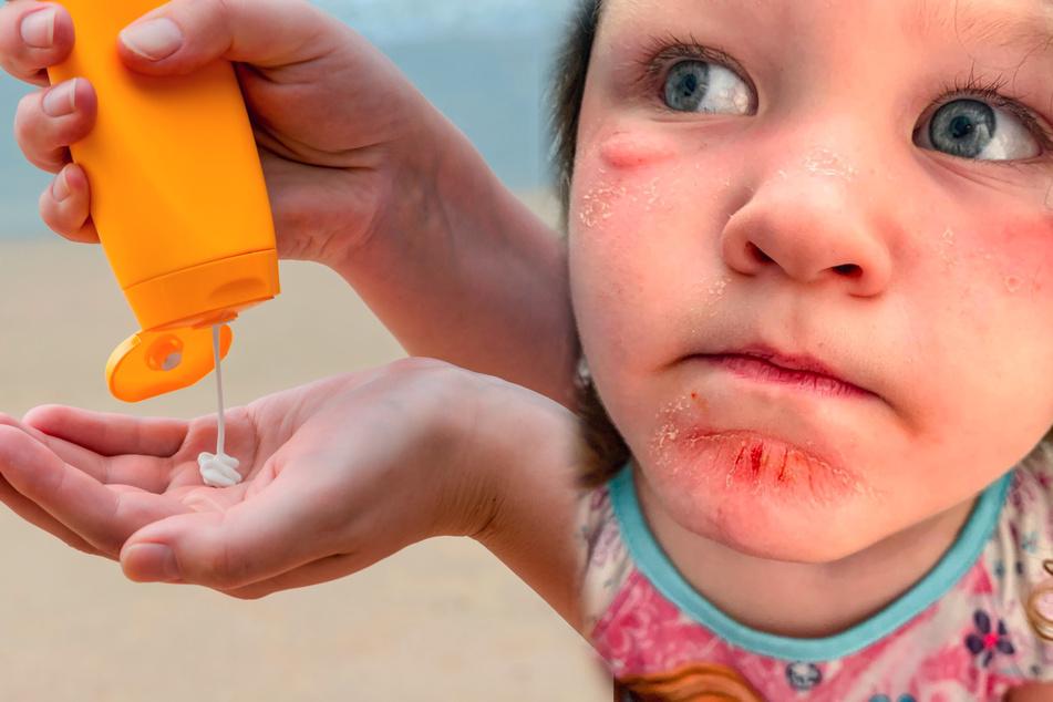 Mutter zeigt schmerzhafte Folgen von Sonnencreme bei ihrem Kind