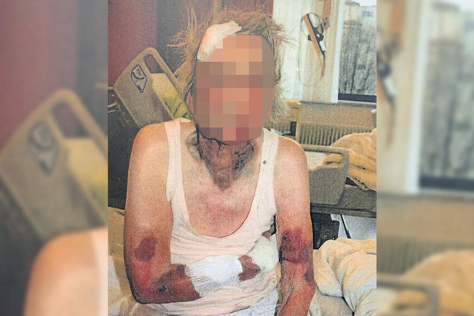 Es ist ein Wunder, dass die Großmutter diesen Angriff überlebte. Anfangs ermittelte der Staatsanwalt sogar wegen versuchten Totschlags.