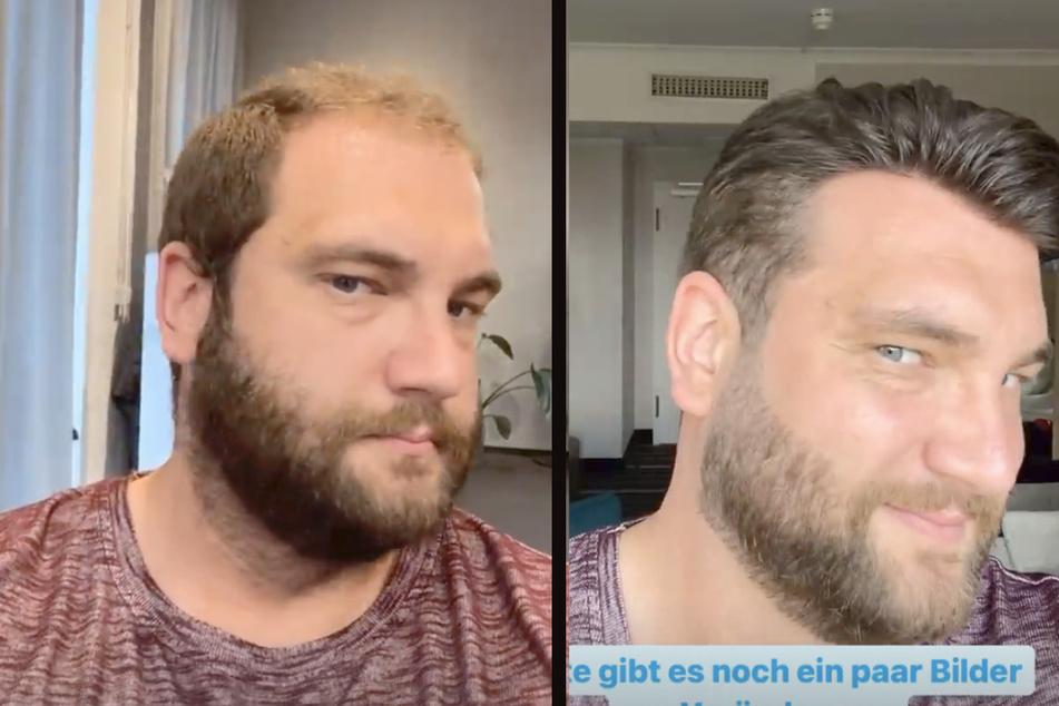 Philipp (34) vorher (l.) und nach seiner Verwandlung mit Toupet (r.)