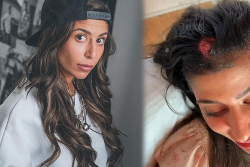 Eva Benetatou (28) leidet unter kreisrundem Haarausfall. (Fotomontage)