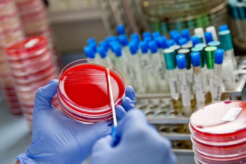 Auf einer Bakterienkulturplatte untersucht eine Labormitarbeiterin eine Probe auf Krankenhauskeime.