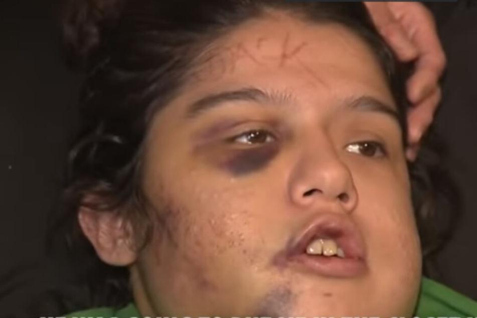 Catalina Mireles (22) erlitt unter anderem einen dreifachen Kieferbruch.