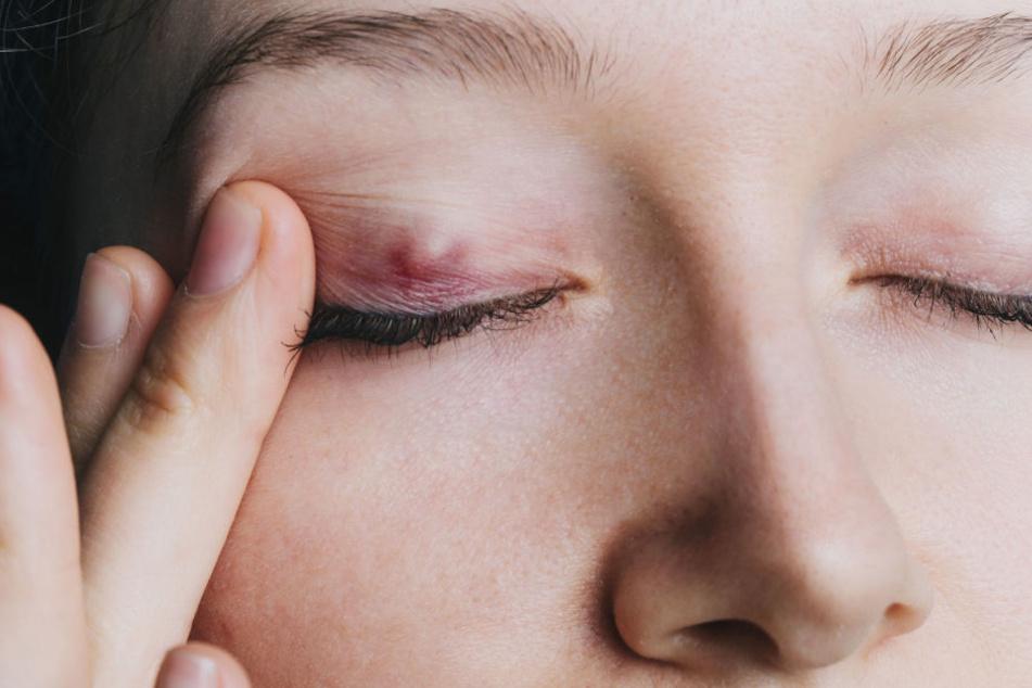Frau verliert Kontaktlinse: Nach 28 Jahren wiedergefunden - im Auge!