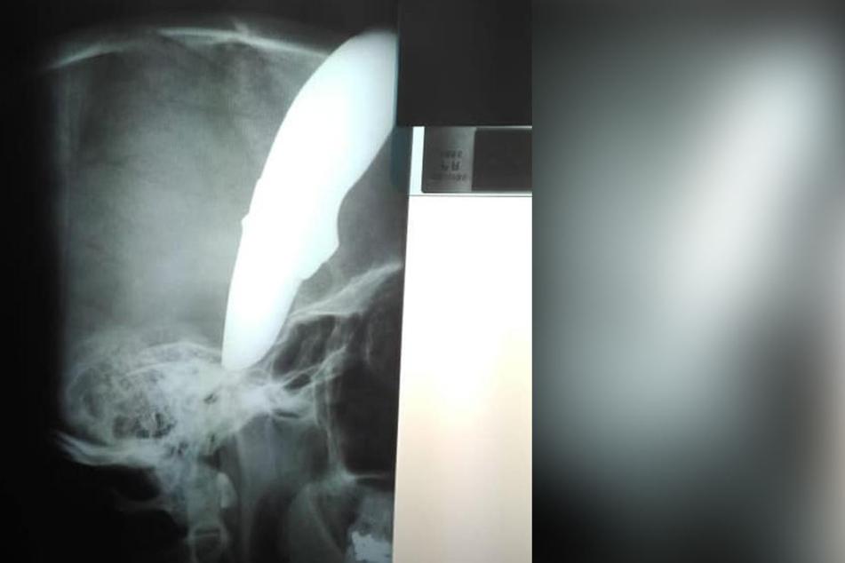 Die Röntgenaufnahme zeigt, wie tief das Messer in seinem Kopf steckte.