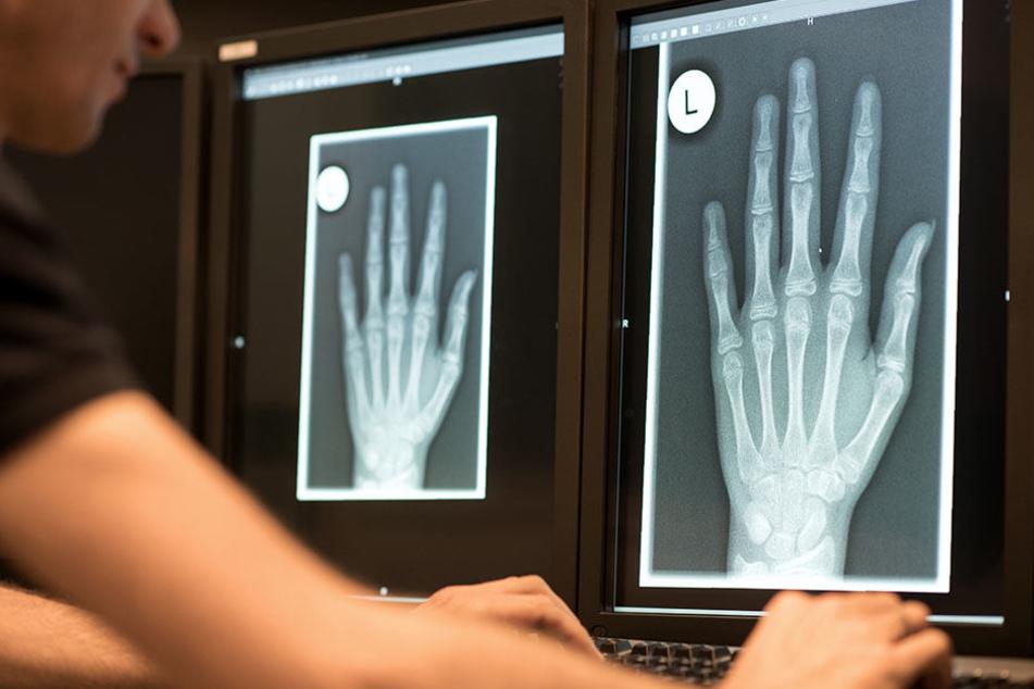 Ein Radiologe schaut sich im Röntgenbild die linke Hand eines 13-Jährigen an.