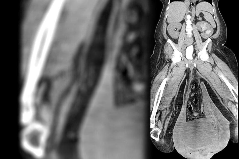 So sah das Röntgenbild des Patienten aus.