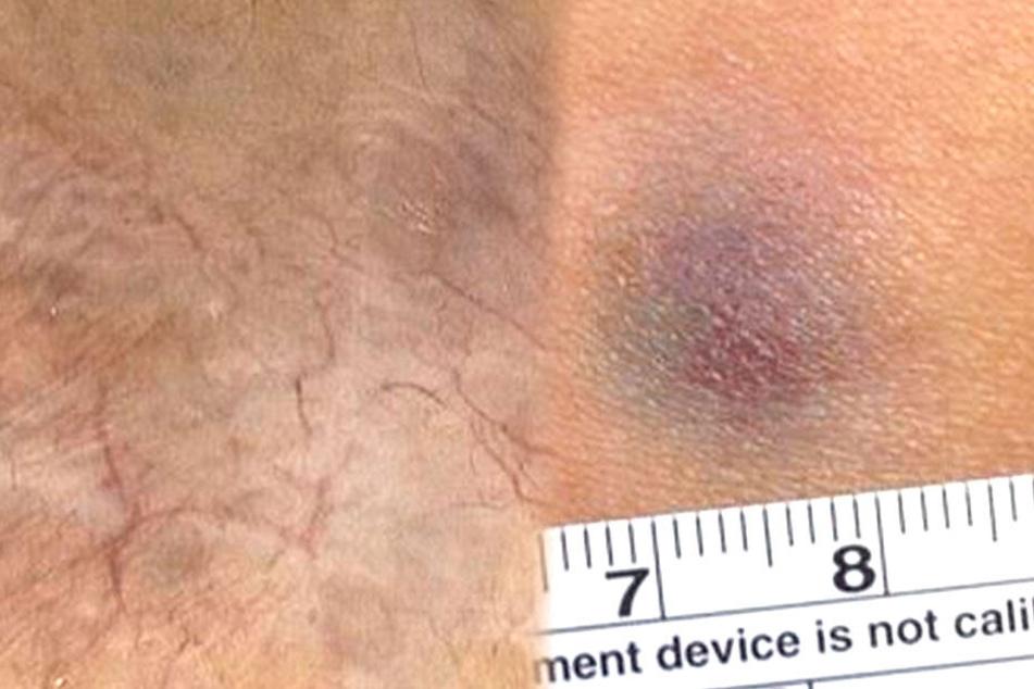 Bilder des medizinischen Falls wurden in einer medizinischen Fachzeitschrift veröffentlicht.