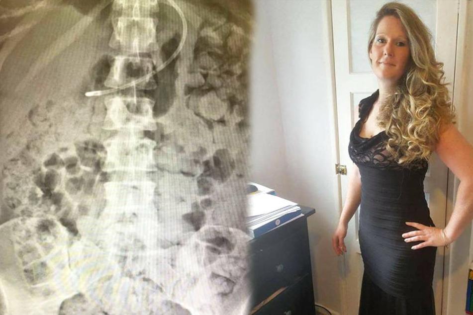 Kate Yeoman (rechts) wurde bei einem Eingriff der Blinddarm verletzt. Seitdem bewegen sich die Fäkalien durch ihren gesamten Körper (rechts).