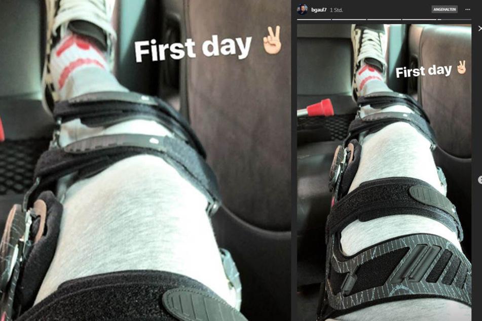 In seiner Instagram-Story postete der US-Amerikaner ein Bild seiner Verletzung.