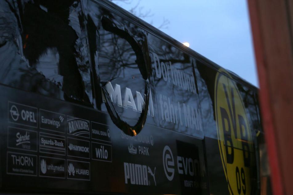 Bei der Explosion am Bus wurde Marc Bartra schwer am Arm verletzt und musste operiert werden.