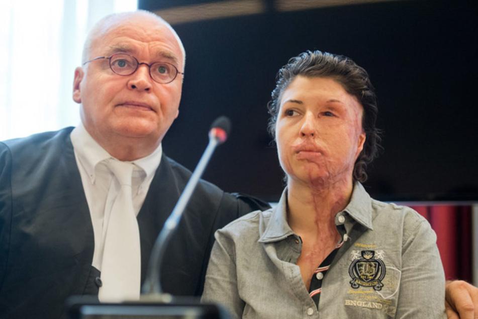 Vor einem Jahr kämpfte Vanessa Münstermann vor Gericht gegen ihren Ex-Freund und Angreifer.