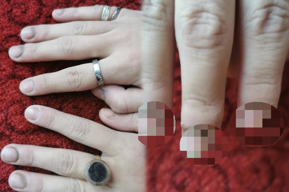 Wegen Corona: Schülerin muss im Nebenjob Latex-Handschuhe tragen, später sehen ihre Finger widerlich aus