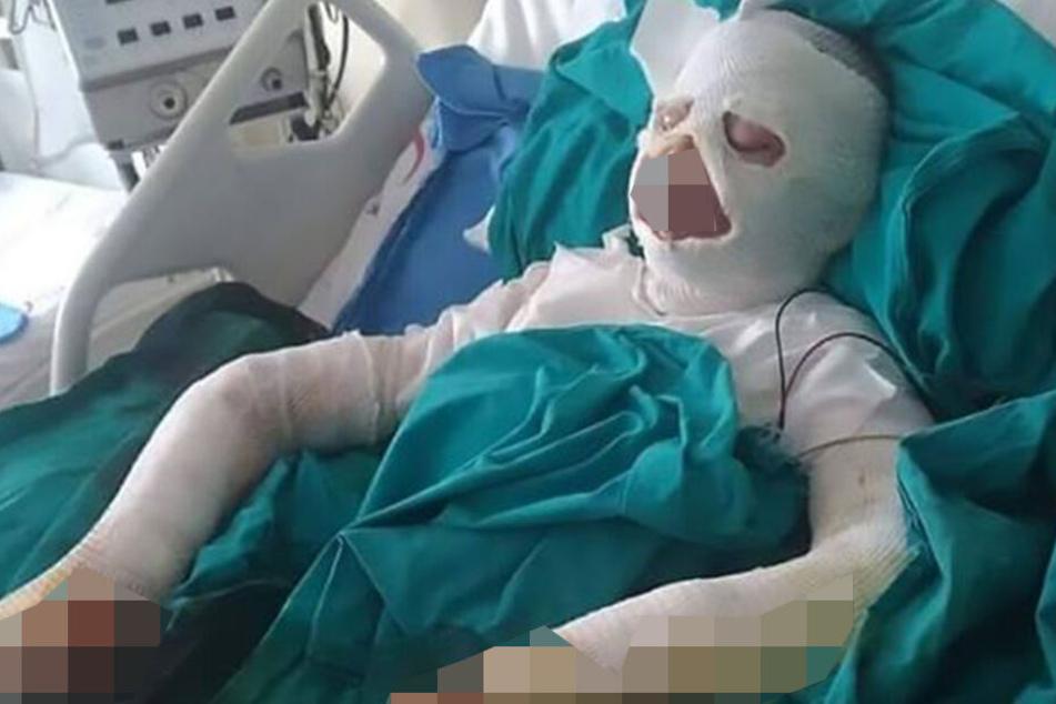 Mit schweren Verbrennungen landete ein läusegeplagtes Mädchen in der Notaufnahme.