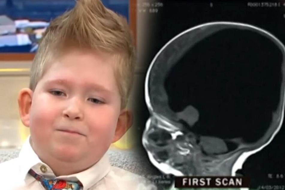 Noah Wall wurde einst mit mit nur zwei Prozent seines Gehirns geboren.
