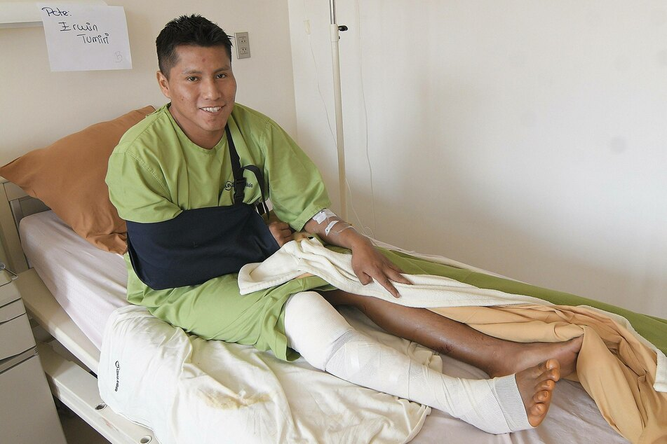 Erwin Tumiri poses as he recovers from the injuries he suffered in the serious bus crash.