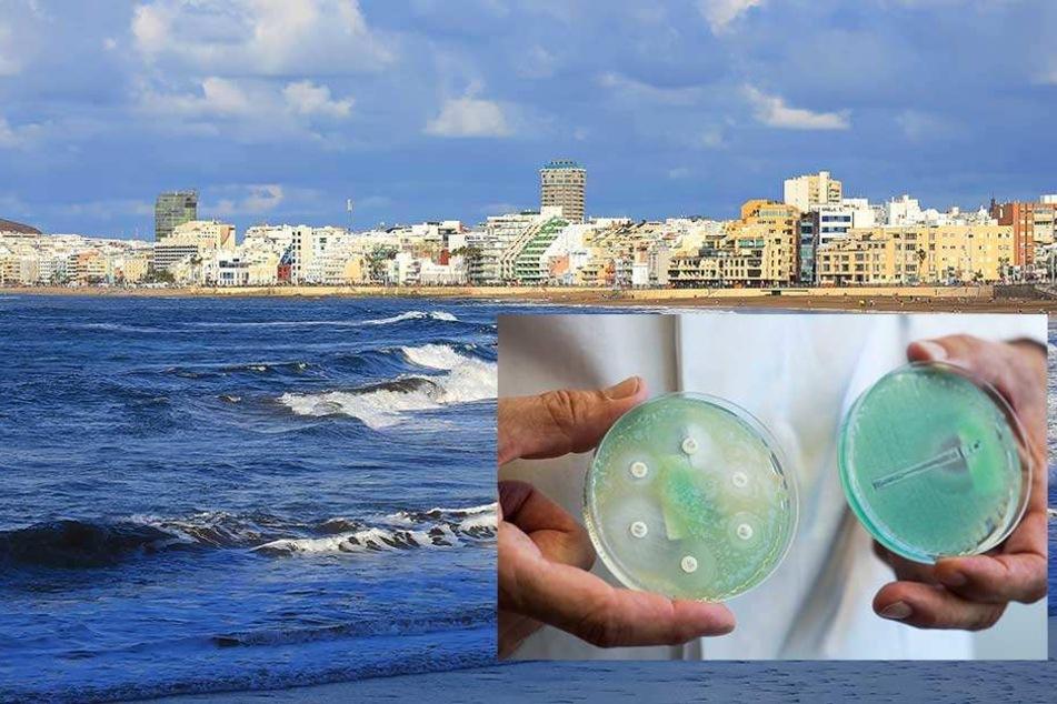 Urlauber schleppen tödliche Bakterien aus Gran Canaria ein