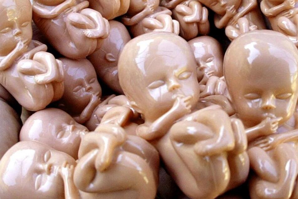 Die Kunststoff-Modelle stellen Embryos in der zehnten Schwangerschaftswoche in Originalgröße dar.