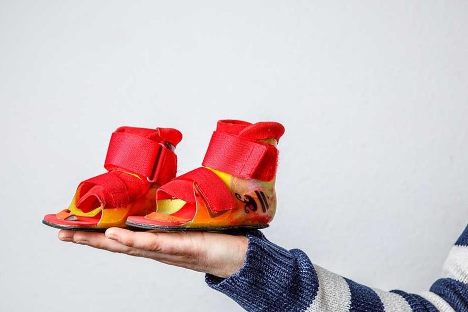 Die Krankheit verschlingt Unsummen: Diese Spezial-Schuhe für rund 1800 Euro finanzierte die Krankenkasse für Elena.